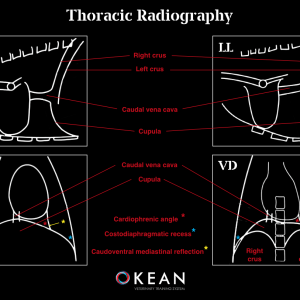 BASIC RADIOGRAPHY OF THE THORAX