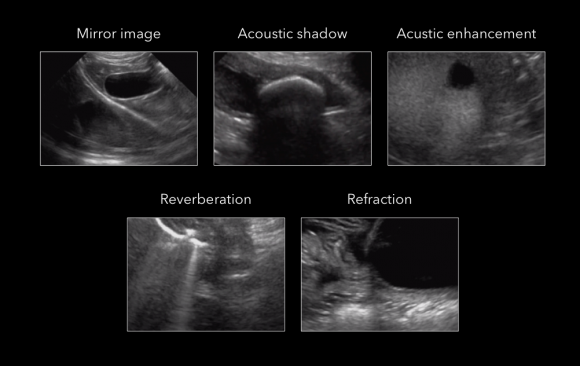 ARTIFACTS IN ULTRASONOGRAPHY